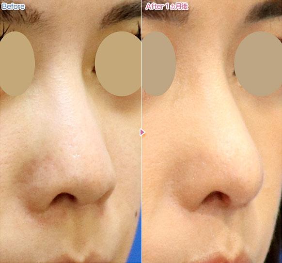 する 自力 高く 鼻 鼻を高くする方法!整形しなくても自力で高くキレイな鼻に出来る